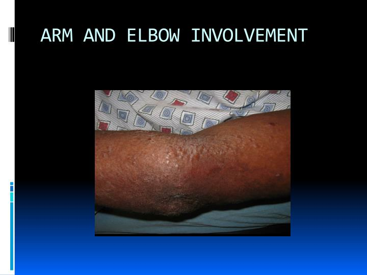 ARM AND ELBOW INVOLVEMENT