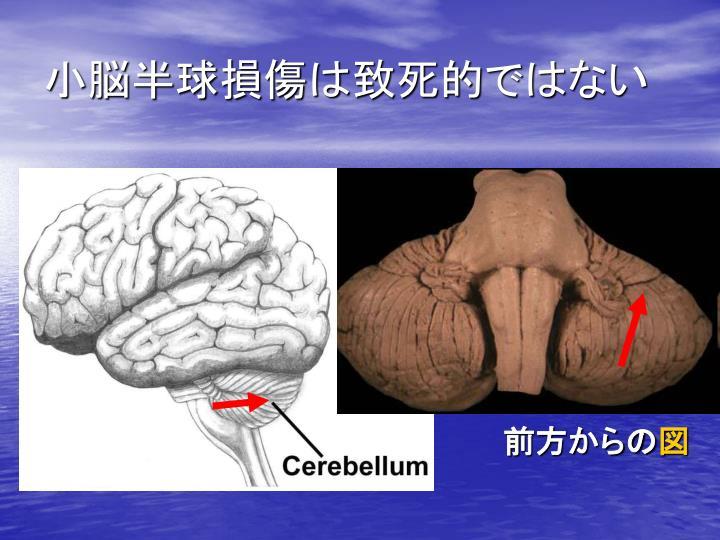 小脳半球損傷は致死的ではない