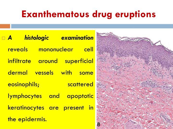 Exanthematous drug eruptions