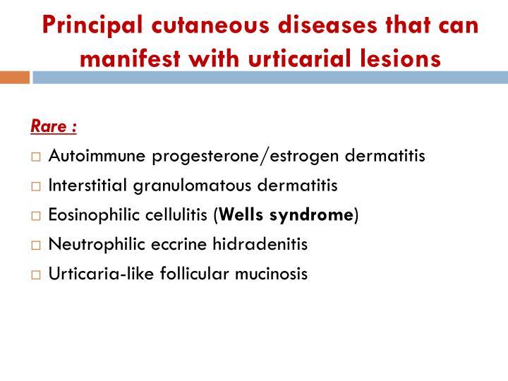 Principal cutaneous diseases that can