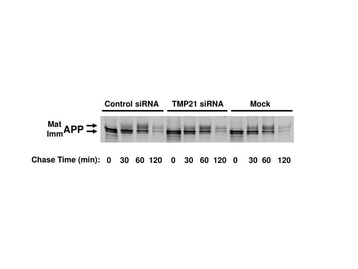 Control siRNA      TMP21 siRNA            Mock