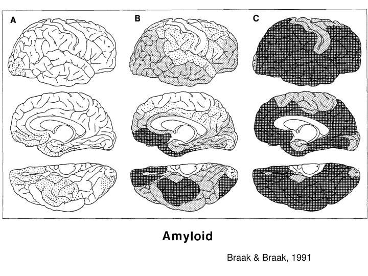 Braak & Braak, 1991