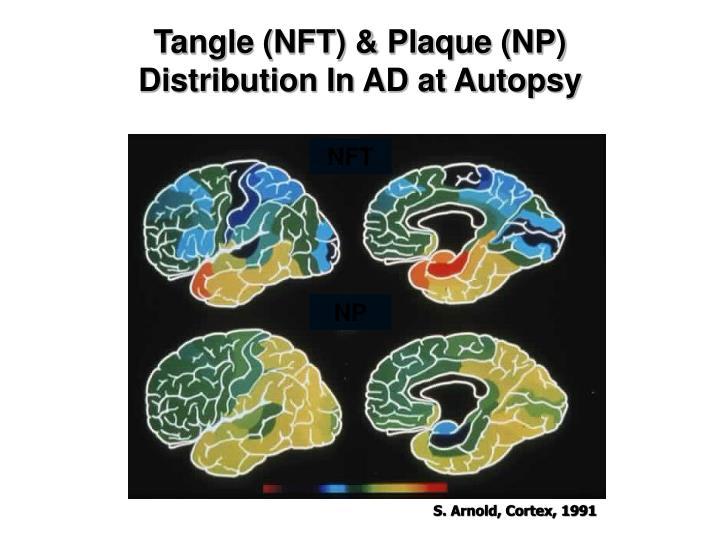 Tangle (NFT) & Plaque (NP)