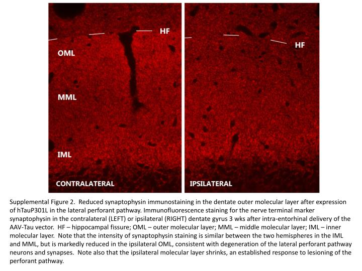 Supplemental Figure 2.  Reduced synaptophysin immunostaining in the dentate outer molecular layer after expression of hTauP301L in the lateral perforant pathway. Immunofluorescence staining for the nerve terminal marker synaptophysin in the contralateral (LEFT) or ipsilateral (RIGHT) dentate gyrus 3 wks after intra-entorhinal delivery of the AAV-Tau vector.  HF – hippocampal fissure; OML – outer molecular layer; MML – middle molecular layer; IML – inner molecular layer.  Note that the intensity of synaptophysin staining is similar between the two hemispheres in the IML and MML, but is markedly reduced in the ipsilateral OML, consistent with degeneration of the lateral perforant pathway neurons and synapses.  Note also that the ipsilateral molecular layer shrinks, an established response to lesioning of the perforant pathway.