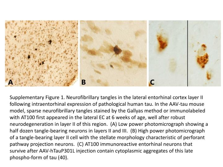 Supplementary Figure 1. Neurofibrillary tangles in the lateral entorhinal cortex layer II following intraentorhinal expression of pathological human tau. In the AAV-tau mouse model, sparse neurofibrillary tangles stained by the Gallyas method or immunolabeled with AT100 first appeared in the lateral EC at 6 weeks of age, well after robust neurodegeneration in layer II of this region.  (A) Low power photomicrograph showing a half dozen tangle-bearing neurons in layers II and III.  (B) High power photomicrograph of a tangle-bearing layer II cell with the stellate morphology characteristic of perforant pathway projection neurons.  (C) AT100 immunoreactive entorhinal neurons that survive after AAV-hTauP301L injection contain cytoplasmic aggregates of this late phospho-form of tau (40).