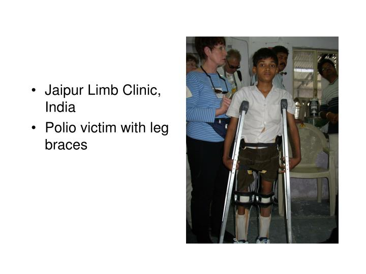 Jaipur Limb Clinic, India