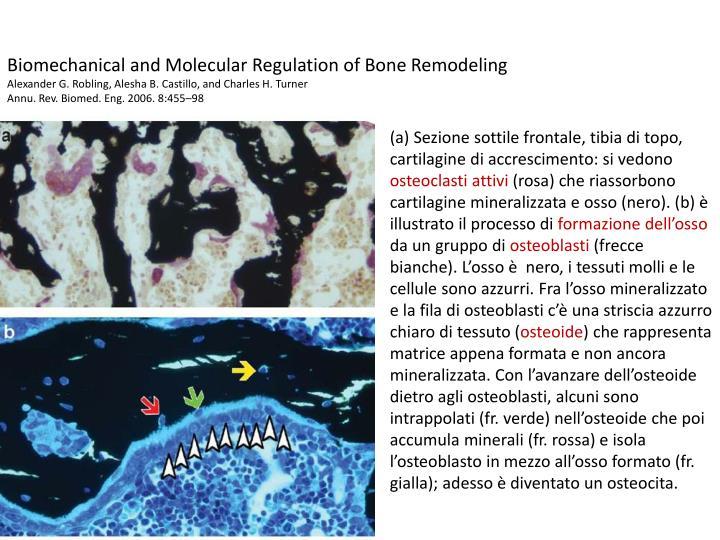 Biomechanical and Molecular Regulation of Bone Remodeling