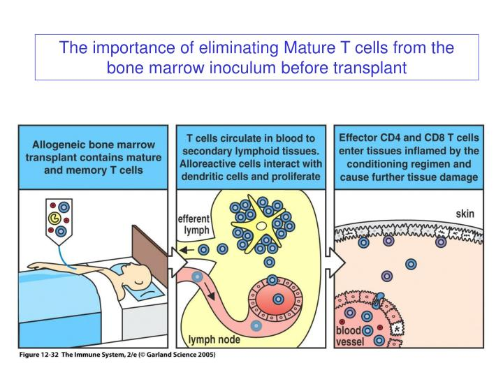 The importance of eliminating Mature T cells from the bone marrow inoculum before transplant