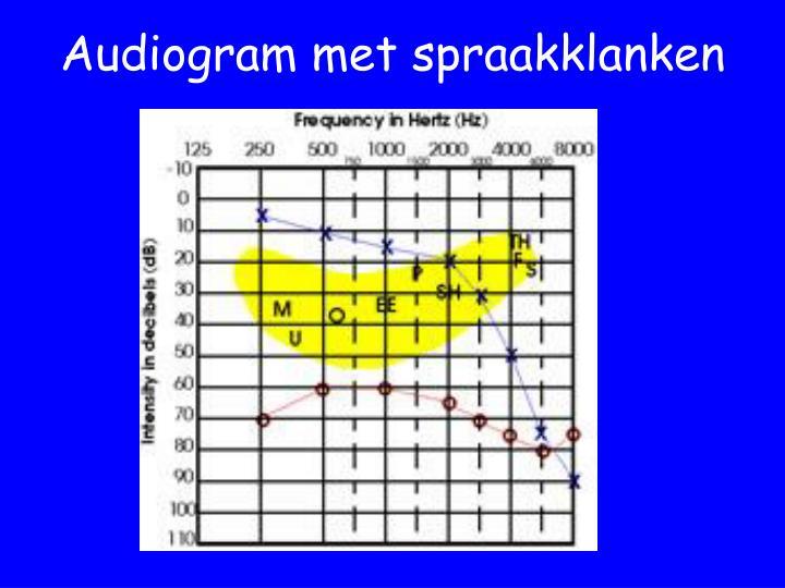 Audiogram met spraakklanken