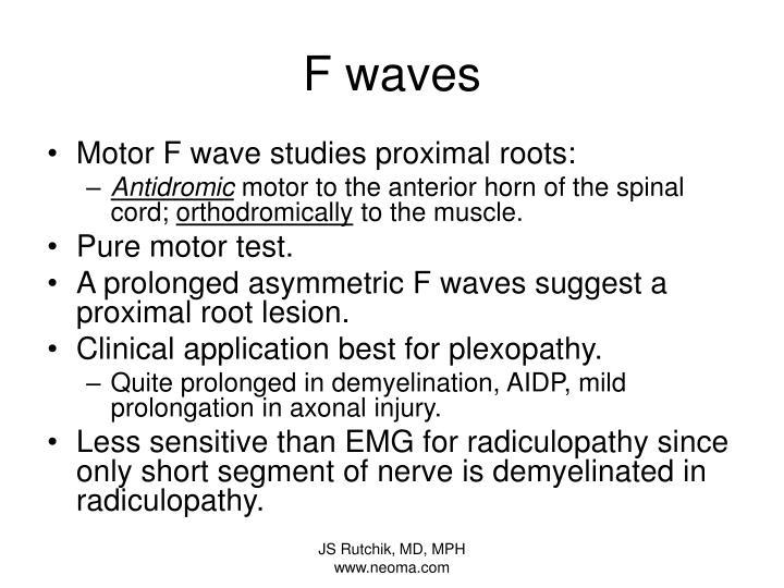 F waves