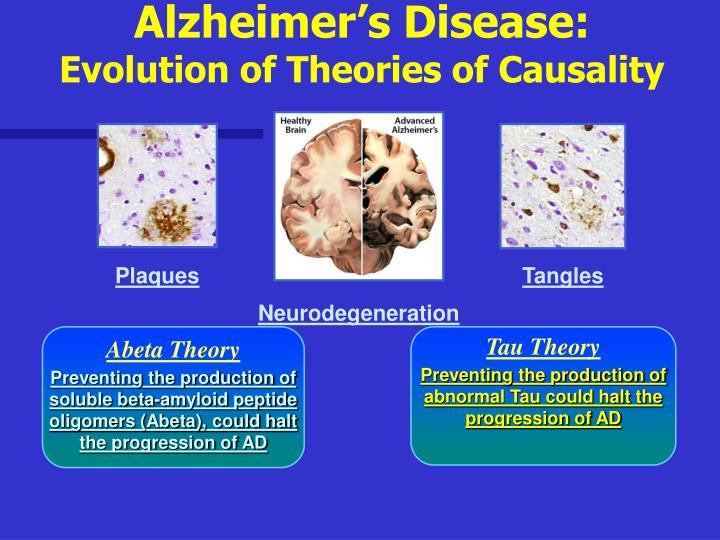 Alzheimer's Disease: