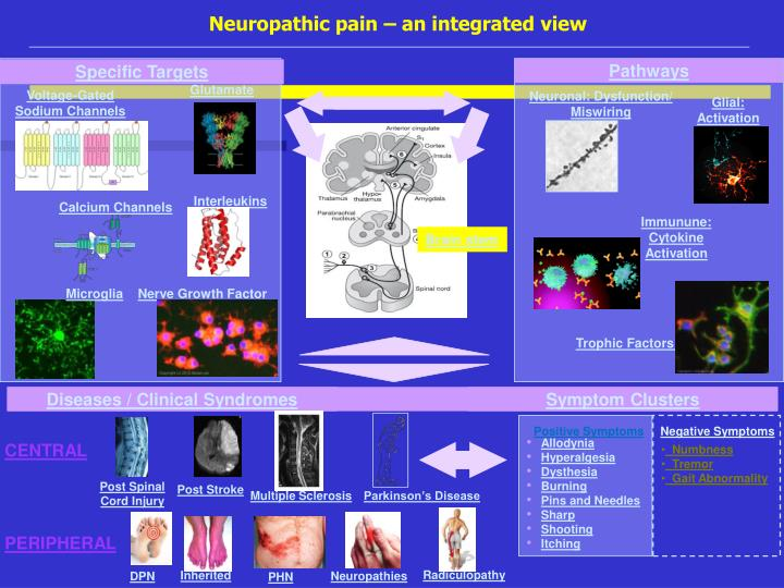 Neuropathic pain – an integrated view