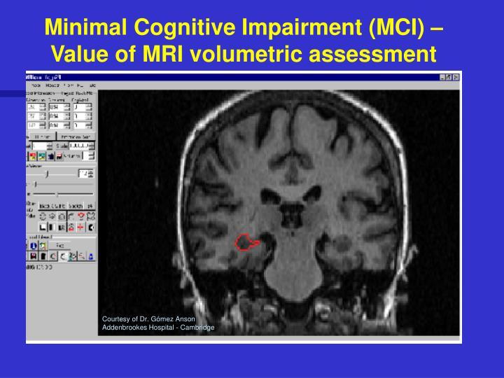 Minimal Cognitive Impairment (MCI) – Value of MRI volumetric assessment