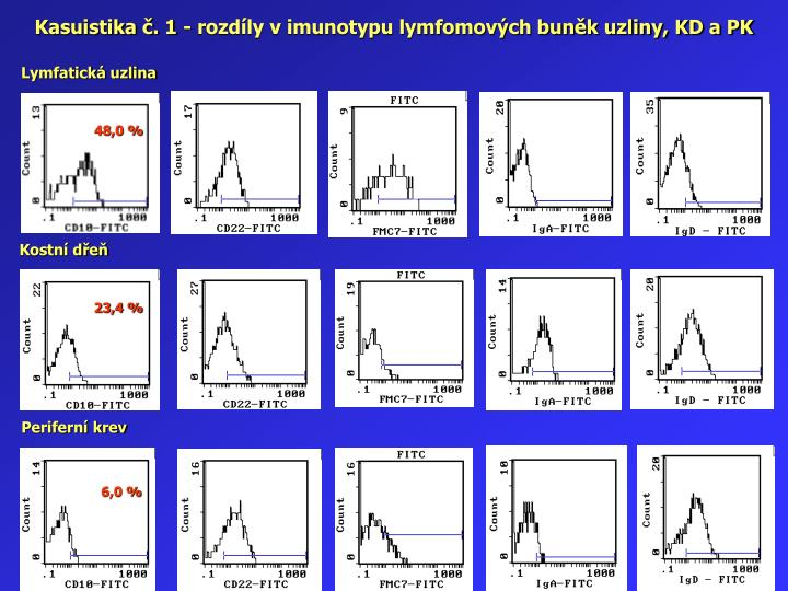 Kasuistika č. 1 - rozdíly v imunotypu lymfomových buněk uzliny, KD a PK