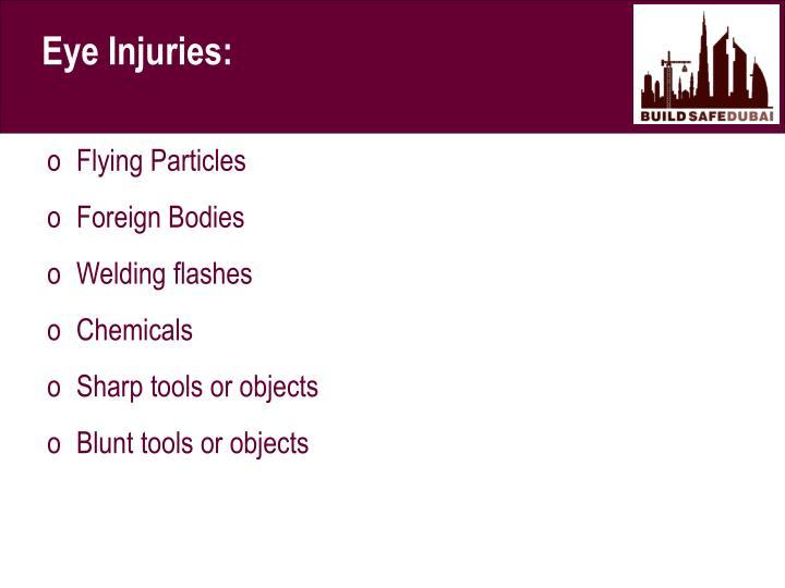 Eye Injuries: