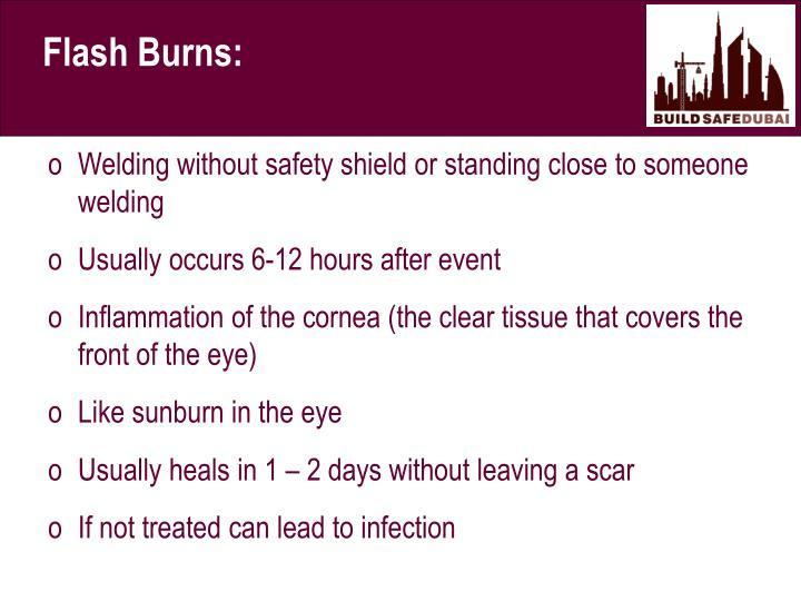 Flash Burns: