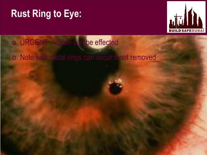 Rust Ring to Eye: