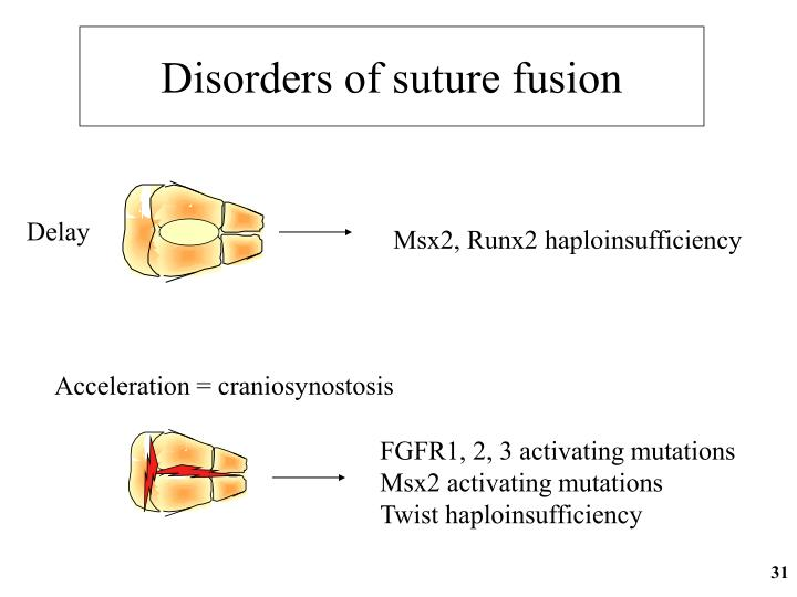 Disorders of suture fusion