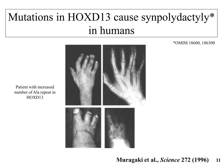 Mutations in HOXD13 cause synpolydactyly*