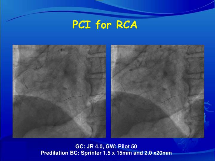 PCI for RCA