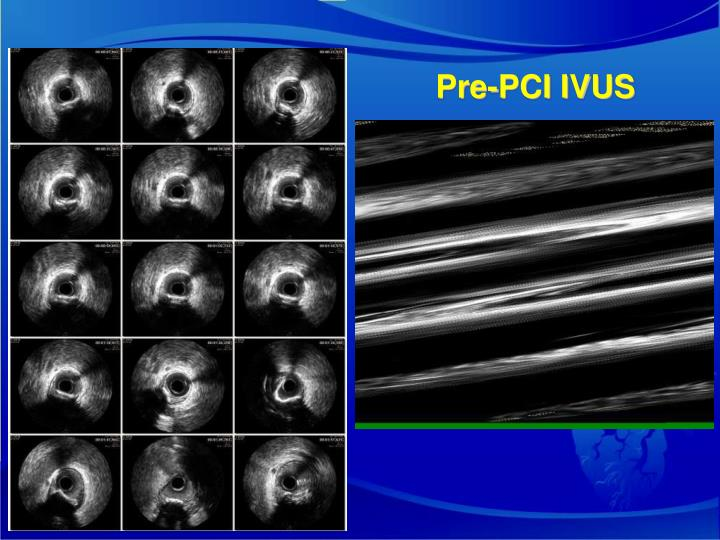 Pre-PCI IVUS