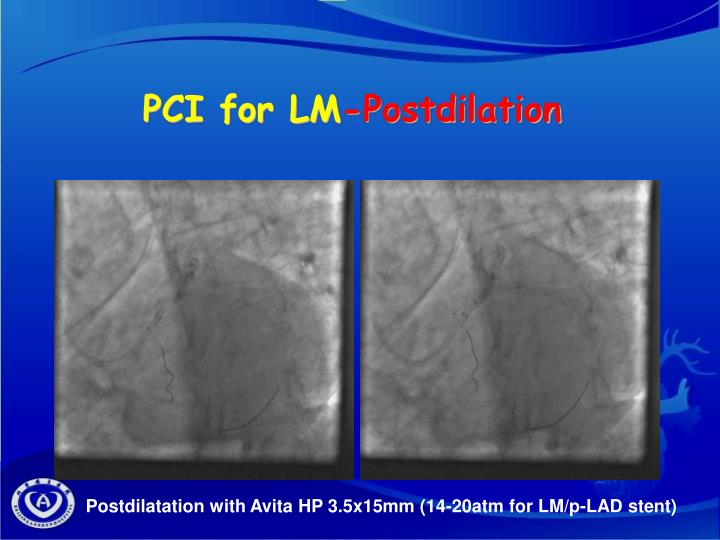 PCI for LM