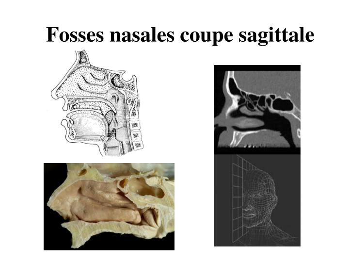 Fosses nasales coupe sagittale
