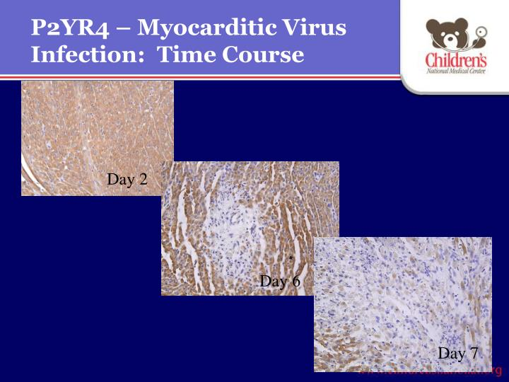 P2YR4 – Myocarditic Virus Infection:  Time Course