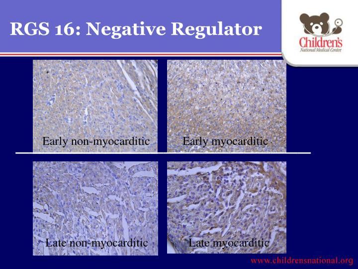 RGS 16: Negative Regulator