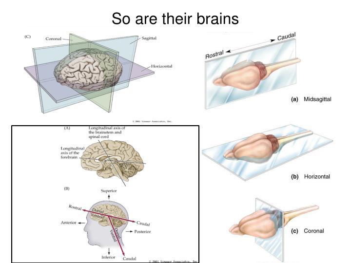 So are their brains