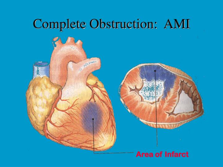 Complete Obstruction:  AMI