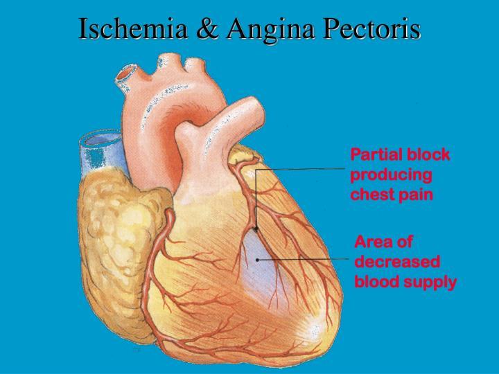 Ischemia & Angina Pectoris