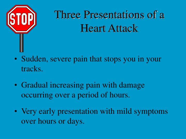 Three Presentations of a