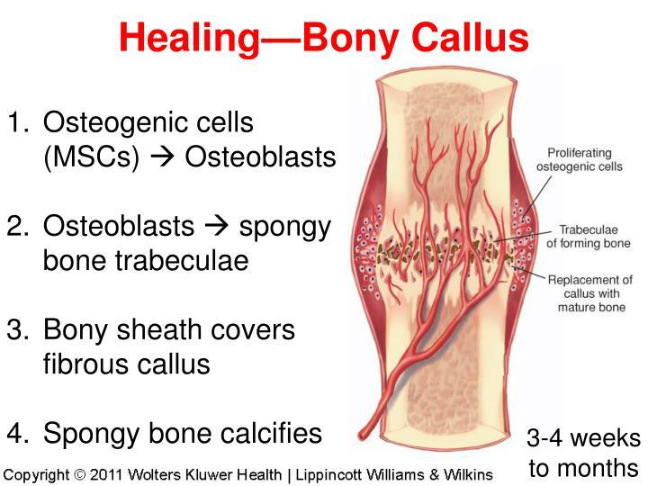 Healing—Bony Callus