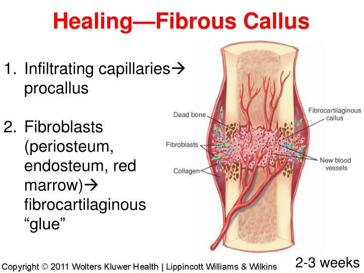 Healing—Fibrous Callus