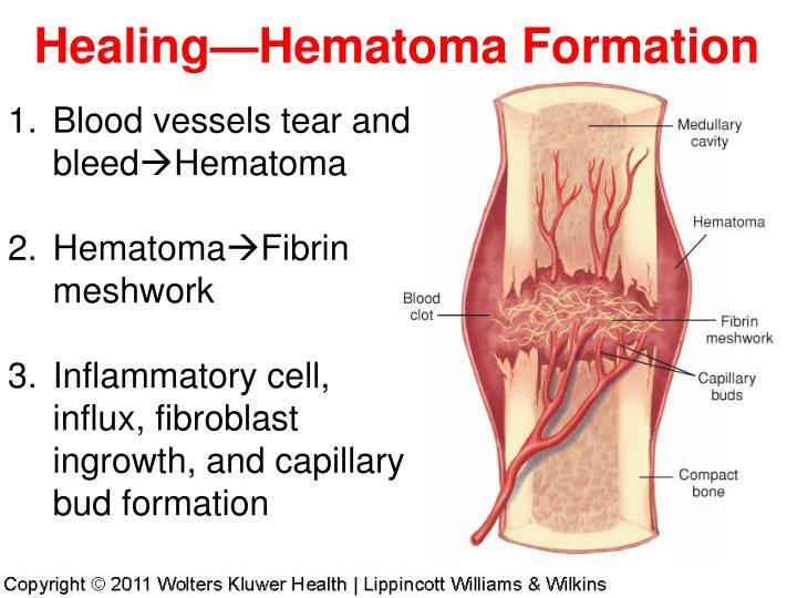 Healing—Hematoma Formation