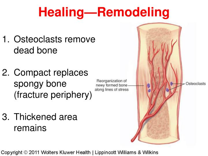 Healing—Remodeling