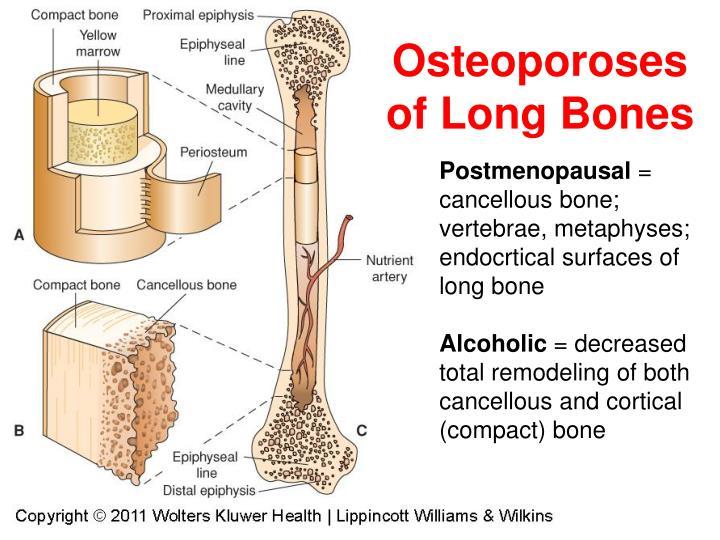 Osteoporoses of Long Bones