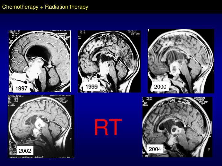 Chemotherapy + Radiation therapy