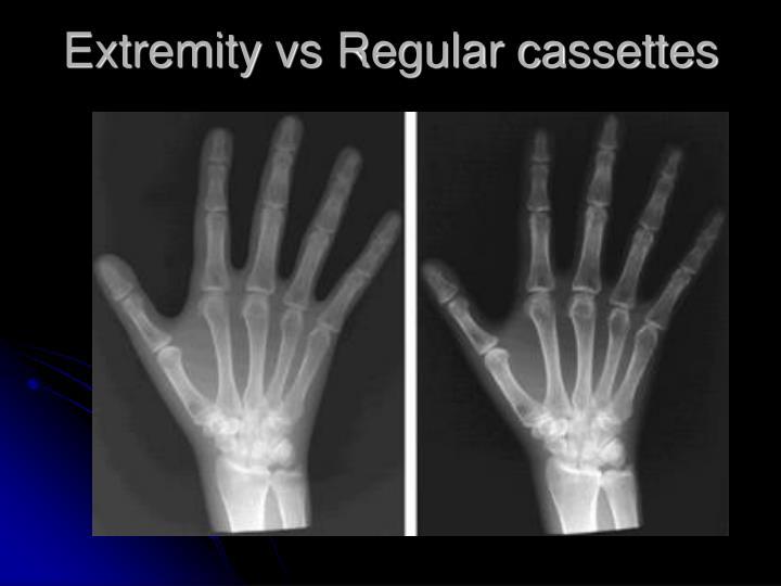 Extremity vs Regular cassettes