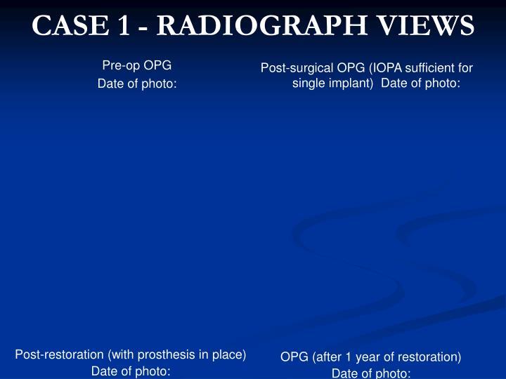 CASE 1 - RADIOGRAPH VIEWS