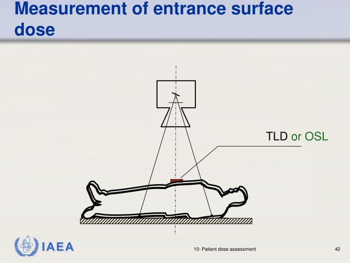 Measurement of entrance surface dose