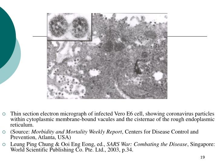 Thin section electron micrograph of infected Vero E6 cell, showing coronavirus particles within cytoplasmic membrane-bound vacules and the cisternae of the rough endoplasmic reticulum.