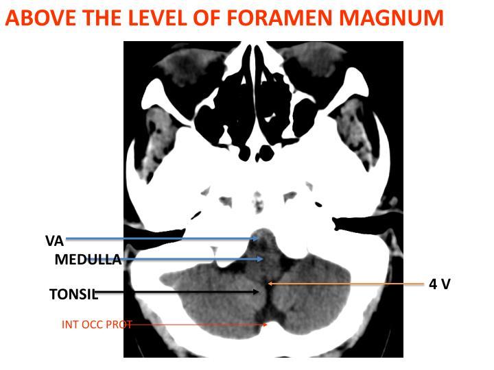 ABOVE THE LEVEL OF FORAMEN MAGNUM