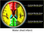 water shed infarct