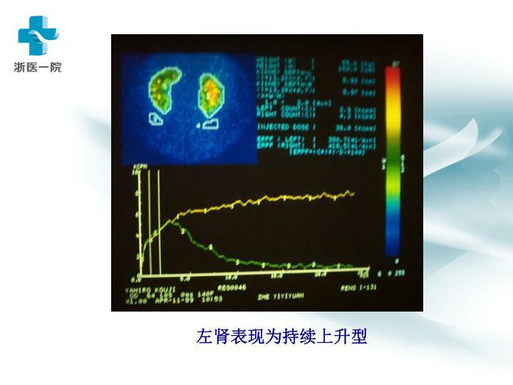 左肾表现为持续上升型