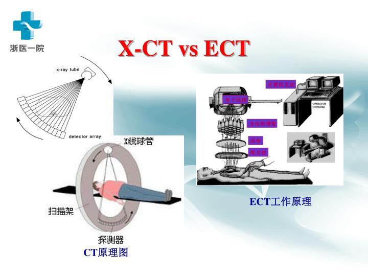 X-CT vs ECT