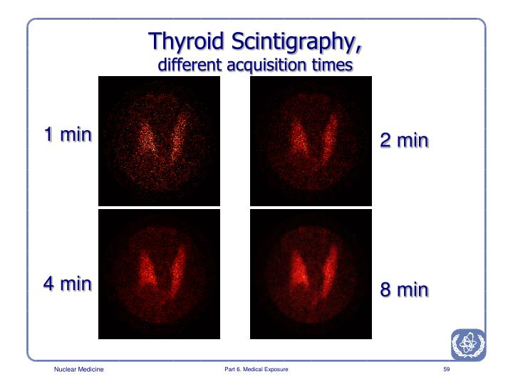 Thyroid Scintigraphy,