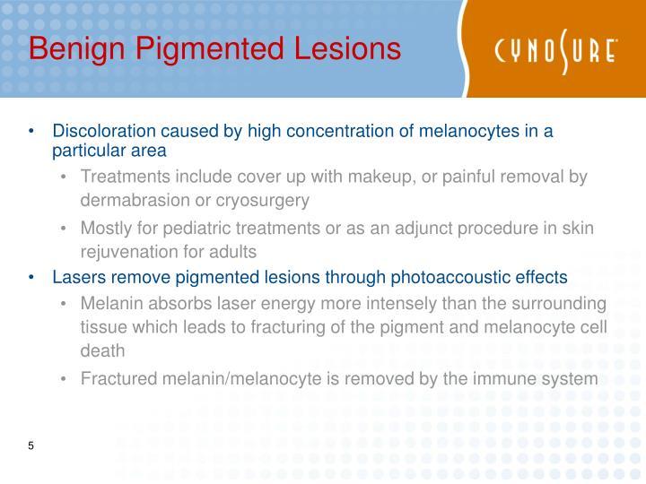 Benign Pigmented Lesions