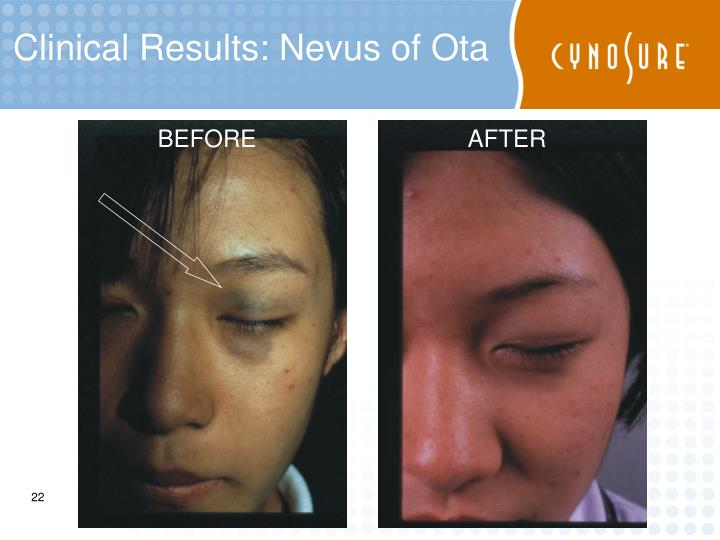 Clinical Results: Nevus of Ota